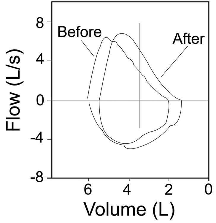 Woolcock Peak Flow Chart Sample Template Download
